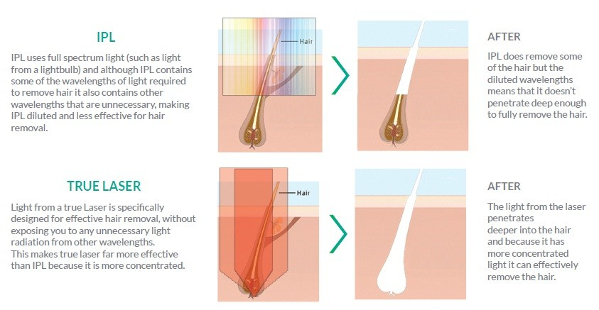 Laser Haarentfernung in Bern. Dauerhafte Haarentfernung für Sie & Ihn.