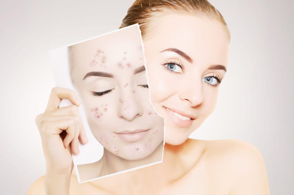 Unreine Haut und Akne? Wir können dir weiterhelfen. Akne und Unreine Haut Behandlungen in Bern