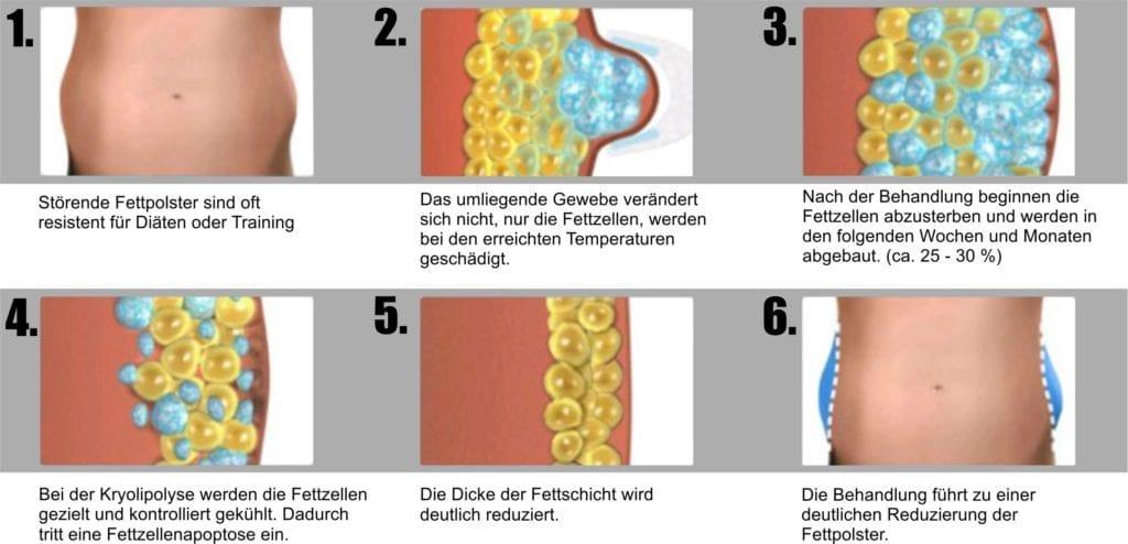 Ablauf der Kryolipolyse Behandlung in Bern. Fettweg durch Kälte - Coolsculpting