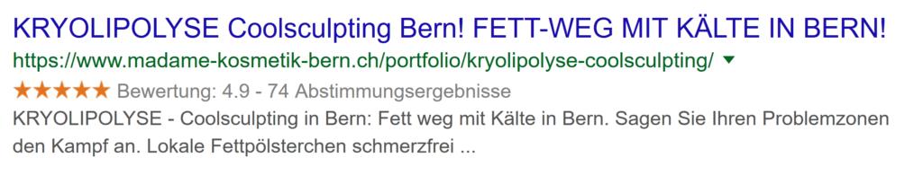 Kryolipolyse in Bern. Fett weg mit Kälte. Coolsculpting System in Bern.