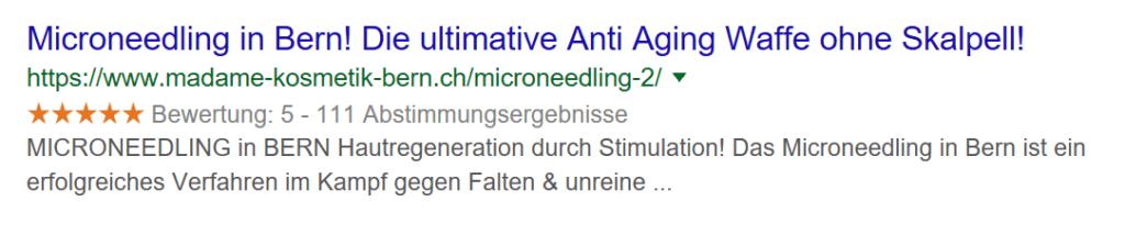 Microneedling in Bern. Anti Falten Behandlung.