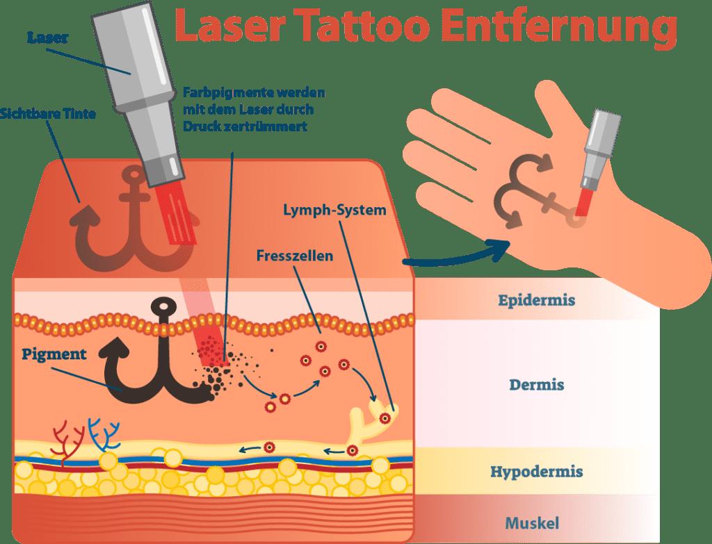 Laser Tattooentfernung in Bern für Männer & Frauen. Kommen Sie zum Experten. Madame Beauty Institut.