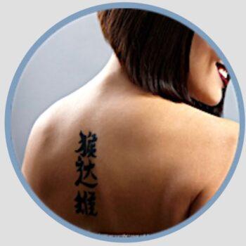 Tattooentfernung Mittelgross Preisliste Kosten in Bern