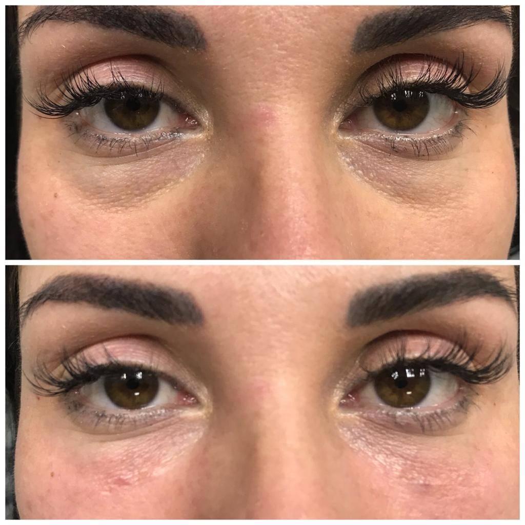 Augenschatten Entfernen