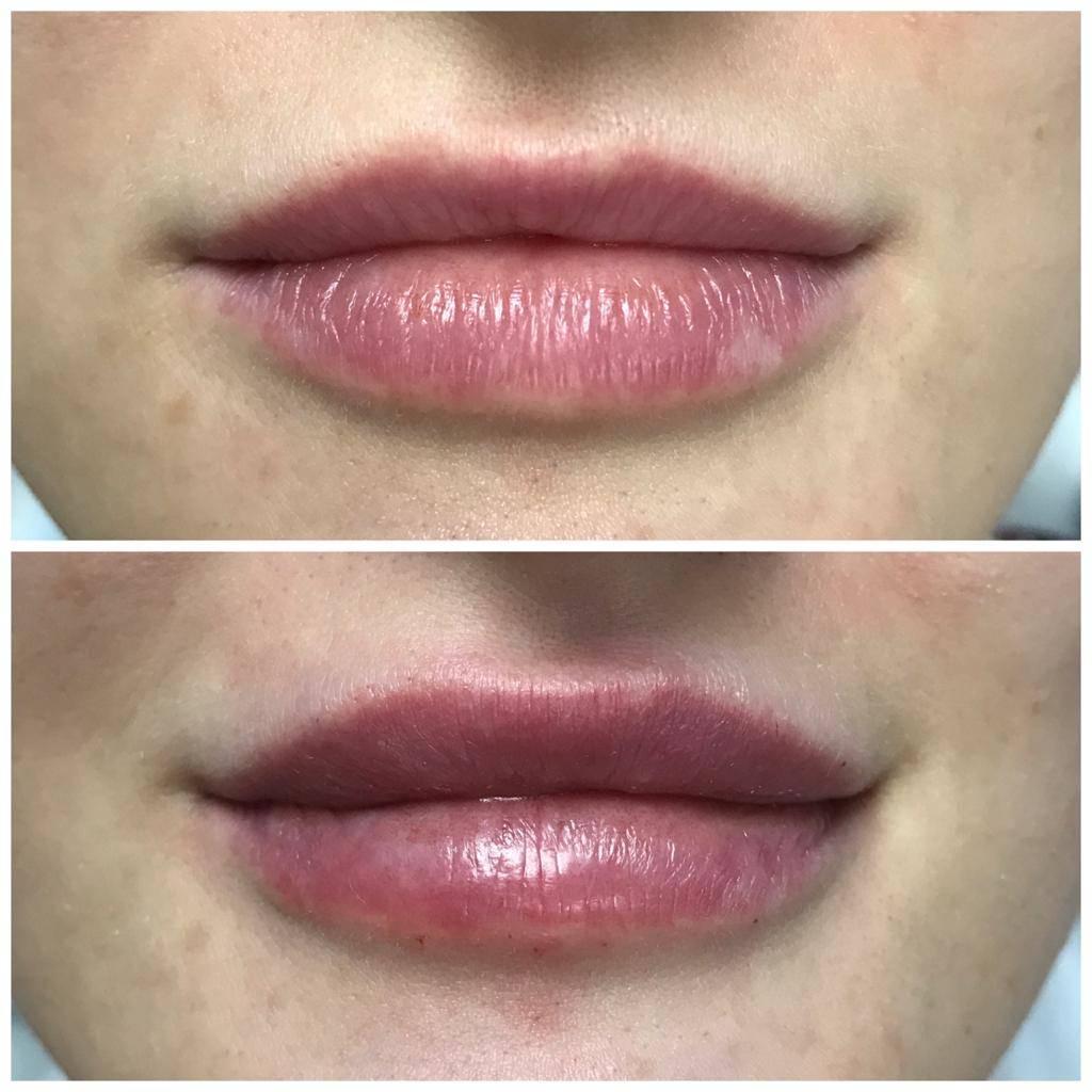 Lippen aufspritzen in Bern Kosten Vorher - Nachher Bilder in Bern
