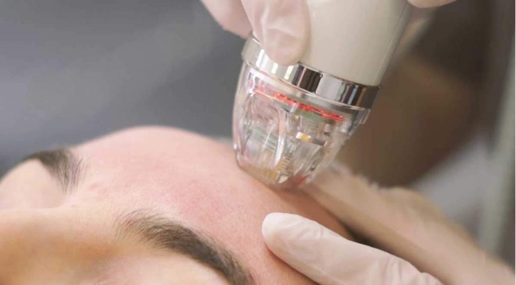 Microneedling mit Radiofrequenz in Bern. Neuste Behandlung gegen Akne, Unreine Haut und Narben in Bern.