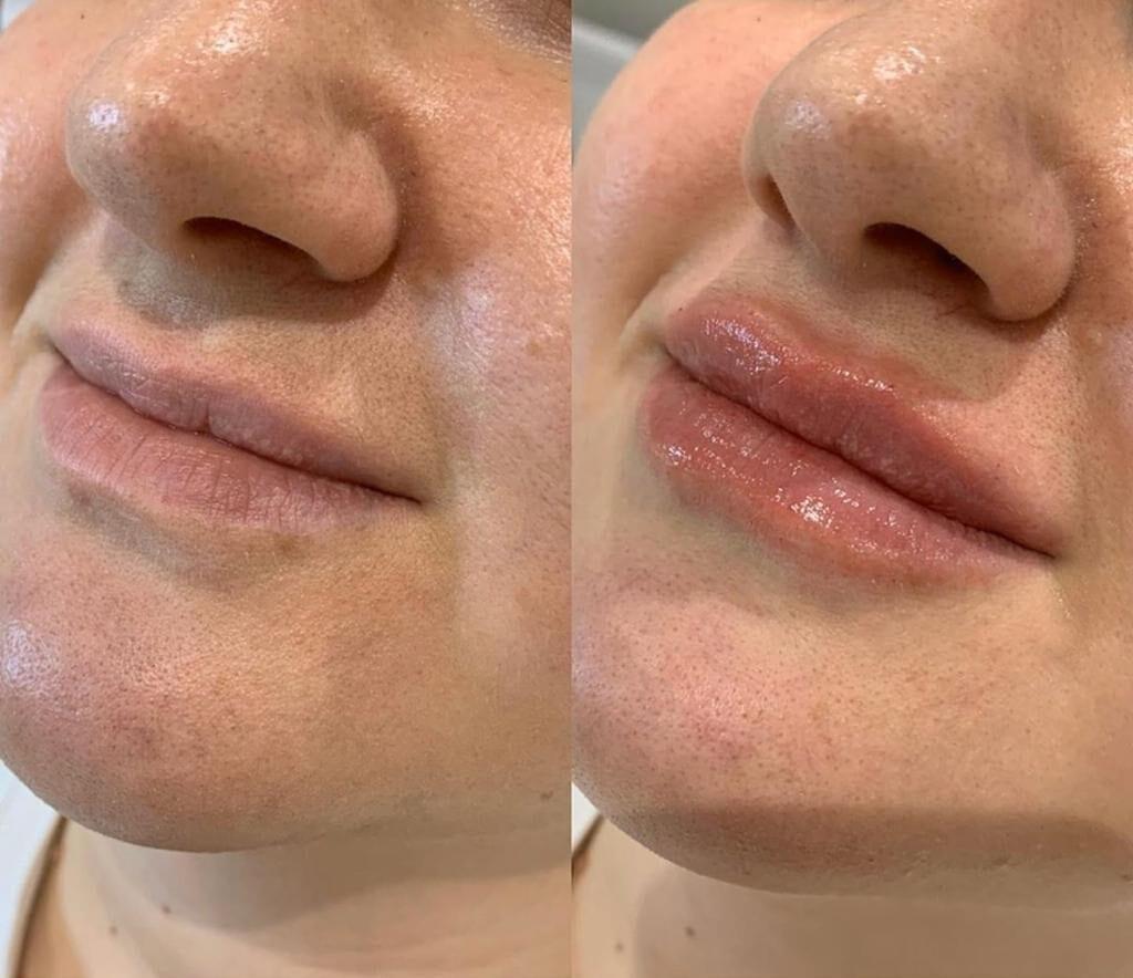 Lippen aufspritzen in Bern. Hier sind die Experten für Lippenvergrösserungen in Bern.